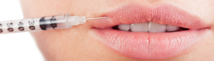 8 Things To Check Before Having Lip Fillers